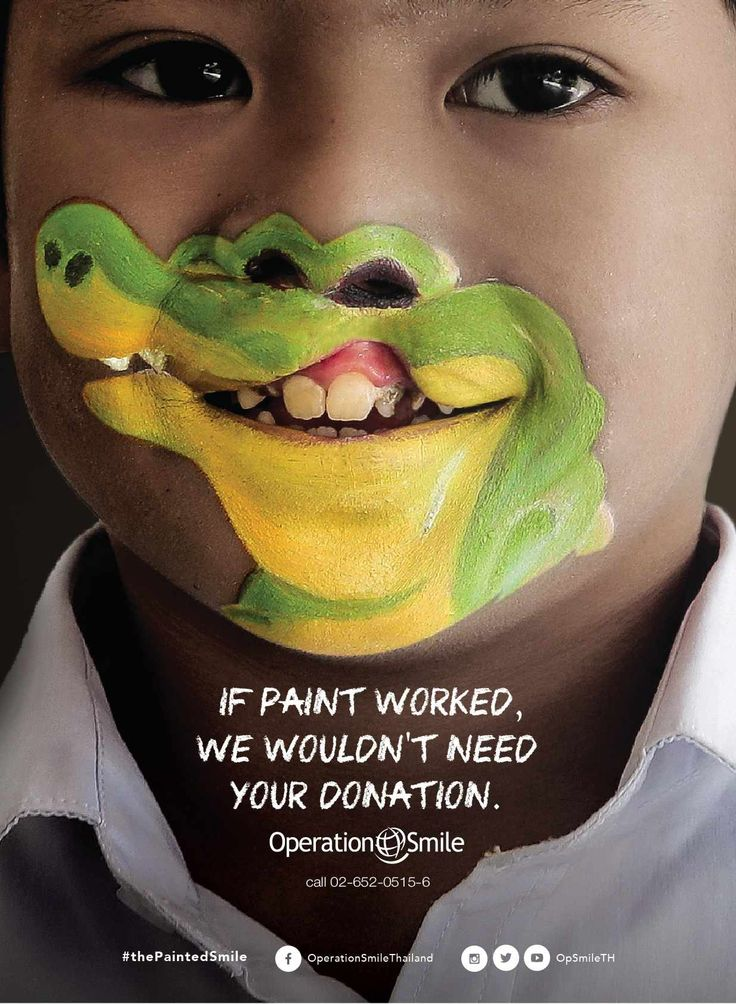 IF PAINT WORKED,WE WOULDN`T  NEED YOUR  DONATION